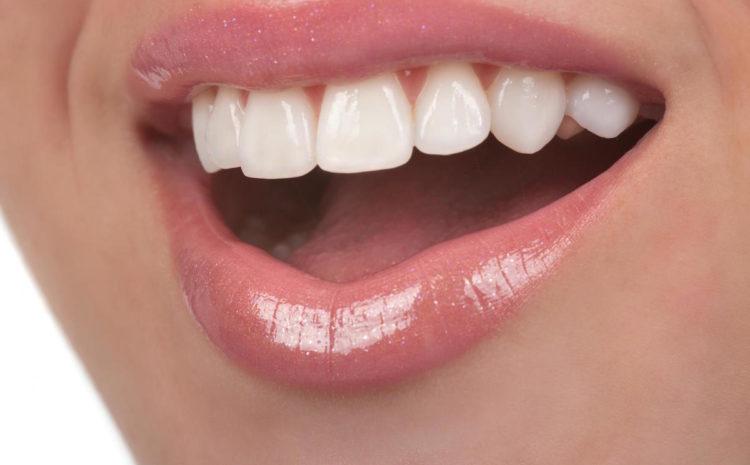 6 Ways to Get Healthier, Whiter Teeth
