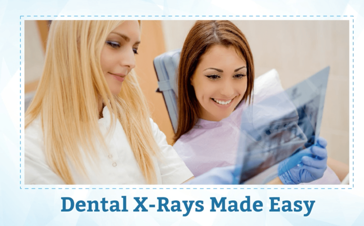 Dental X-rays: Everything You Need To Know About