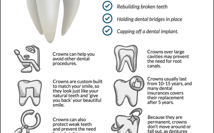 Important Things You Need to Know About Dental Crowns