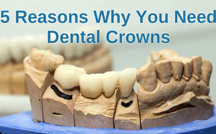5 Reasons Why You Need Dental Crowns
