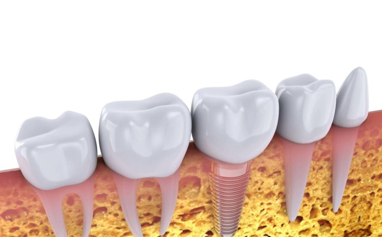 Top 5 Myths about Dental Implants