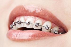 Orthodontic Options in Moonee Ponds