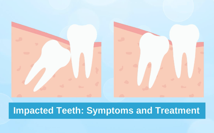 Wisdom Tooth Problems: Signs and Treatment
